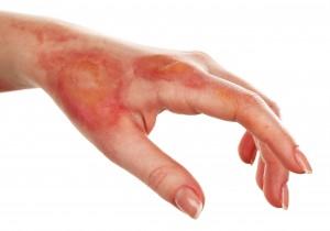 burnt hand